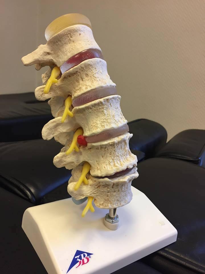 artrose2